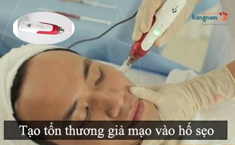 phương pháp cấy da siêu vi điểm