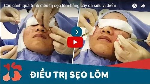 chuyên khoa điều trị sẹo tại Kangnam