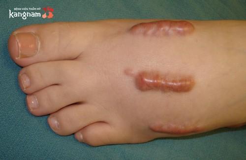 cách trị sẹo lồi lâu năm ở chân