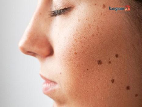 cách trị sẹo lõm sau khi tẩy nốt ruồi