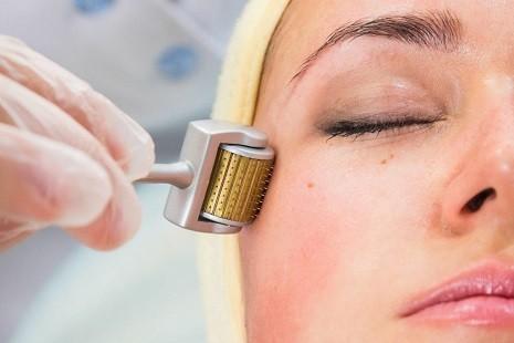 công nghệ lăn kim trị sẹo lõm