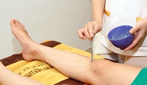 cách trị sẹo thâm ở chân nhanh nhất