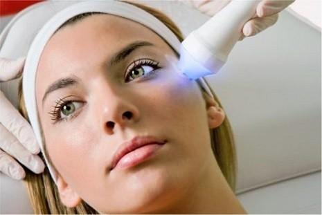 trị sẹo lõm bằng laser có hiệu quả không