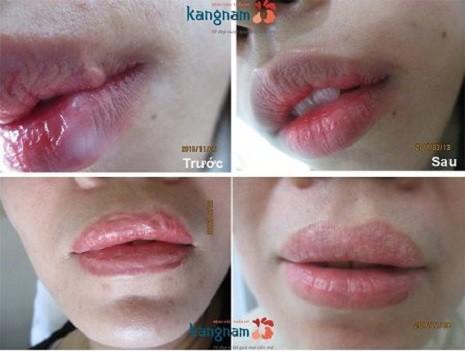 sẹo môi
