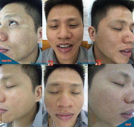 spa trị sẹo rỗ