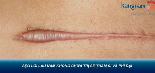 phẫu thuật sẹo lồi